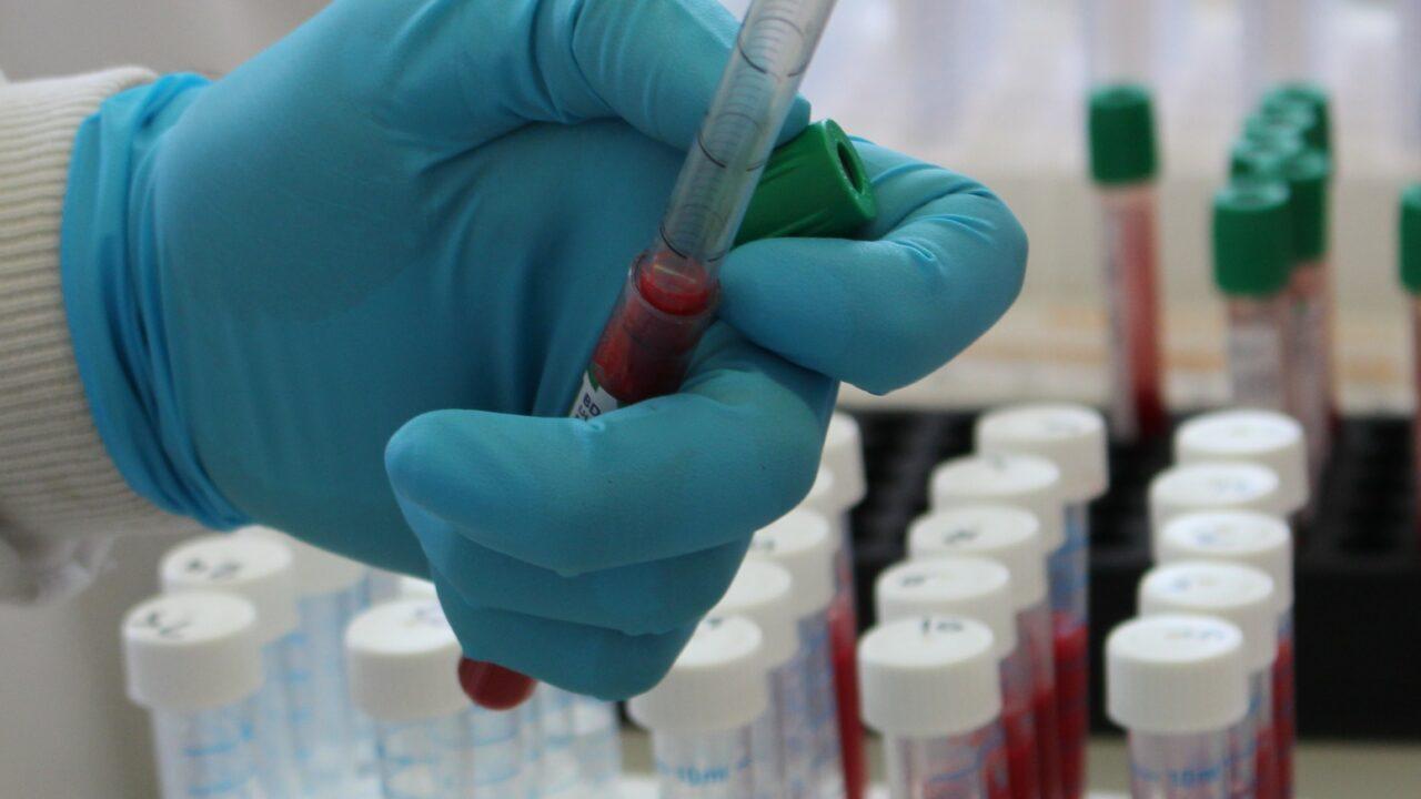 Northern Ireland TB rates surpass 12-year high