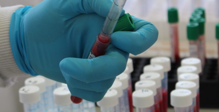 Northern Ireland TB rates surpass 12-year high