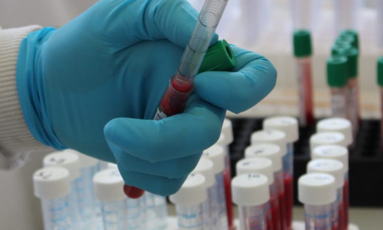 Father and son who tried to fake TB test reactions convicted in court